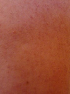 Keratosis Pilaris on Upper Arm